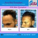 Best Hair Transplant Ludhiana